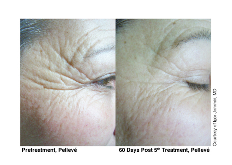 Pellevé_Cosmetic_before_after_5.jpg