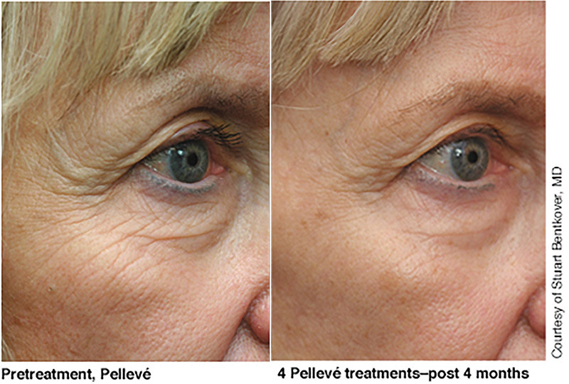 Pellevé_Cosmetic_before_after_1.jpg
