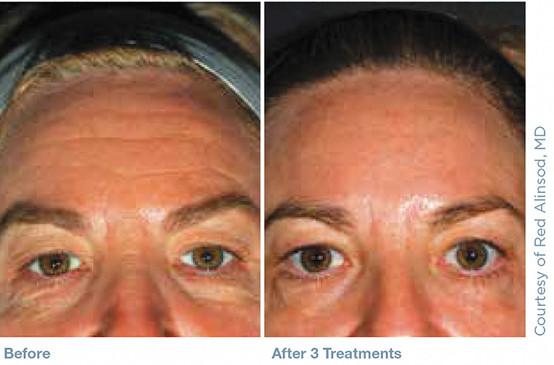 Pellevé_Cosmetic_before_after_2.jpg