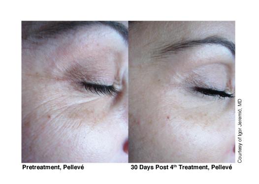 Pellevé_Cosmetic_before_after_3.jpg