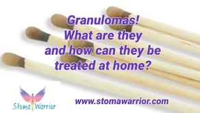 Granulomas! My experience treating large stoma granulomas!