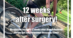 12 Wks On - My Amazing Update Following JPouch Excision, Barbie Butt & Permanent Ileostomy Stoma!