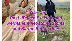 One Year Post Surgery! JPouch Excision and Permanent Ileostomy and Barbie Butt in One Op!