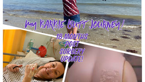 Barbie Butt! My Amazing Recovery 18 Month On!