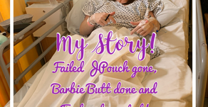 Failed JPouch Removal, Barbie Butt and Permanent Ileostomy Stoma all by Laparoscopic Surgery in One!