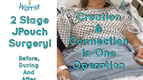 2 Stage Surgery. Creation and Connection of JPouch in 1 Operation. Before, During and After!