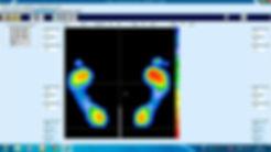 Análisis estático de la pisada