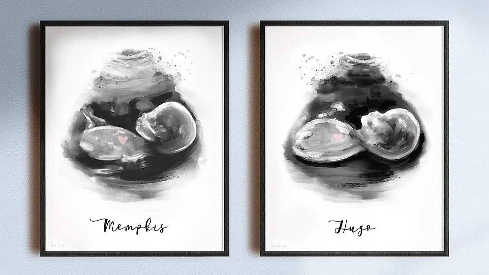 Ecografía ilustrada mellizos/gemelos 2D LIGHT