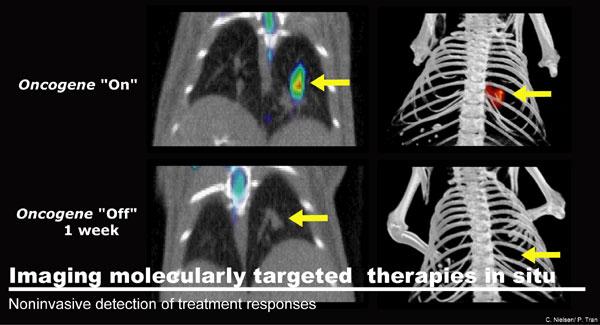 Noninvasive Detection of Treatment