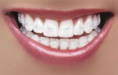 Kfo Backnang, Kieferorthopädie, Kiefergelenkerkrankung, Ästhetik, Zahnspange, Spange, Invisalign, Unsichtbare Zahnspange, Damon-System