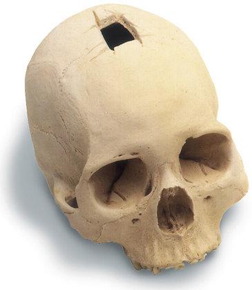 Trephined Cranium w-  std