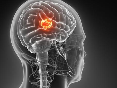 Первая в истории вакцина от злокачественных опухолей головного мозга