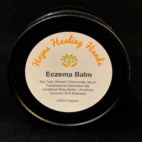 Eczema Balm  All Natural and Organic  2 ounce