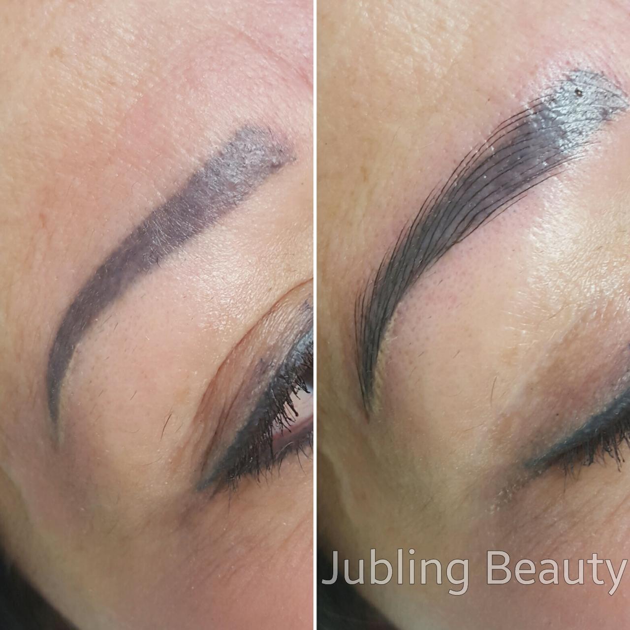 Permanent Makeup Tattoo Removal | J Permanent Makeup Edmonton