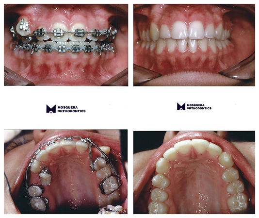 Transposed Teeth- Dr. Arturo F. Mosquera, DMD, miami orthodontist