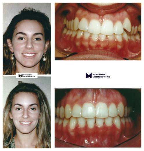 Class II Malocclusion- Dr. Arturo F. Mosquera, DMD, miami orthodontist