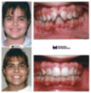 Anterior Diastema- Dr. Arturo F. Mosquera, DMD, miami orthodontist