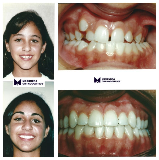Orthognathic Surgery- Dr. Arturo F. Mosquera, DMD, miami orthodontist