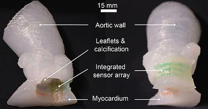 aortic root models 900px.jpg
