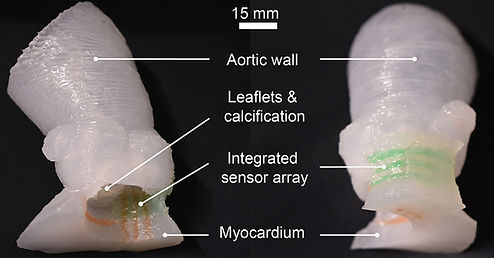 aortic root models 900px.jpg