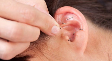 NADA ear acupuncture, community acupuncture, acupuncture for ptsd, acupuncture for trauma, acupuncture for addiction, ear acupuncture san antonio, nada san antonio, community acupuncture san antonio