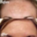 Microdermabrasion on pigmentation Burton