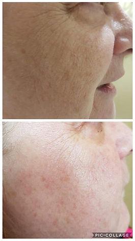 Microdermabrasion Facial Burton