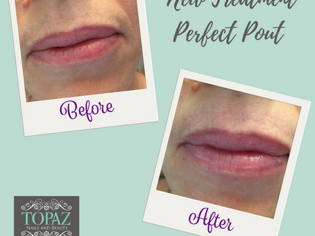 Look after your lips - have the Perfect Pout