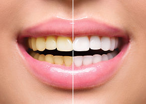 Woman Teeth Before and After Whitening. Happy smiling woman. Dental health Concept. Oral C