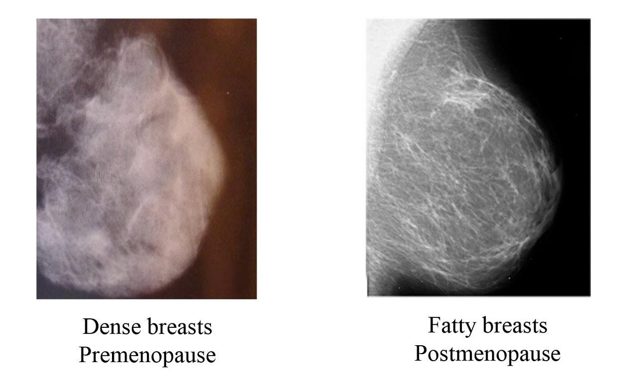 Dense Breast vs Fatty Breasts