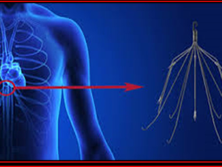 New Study Highlights IVC Filter Problems