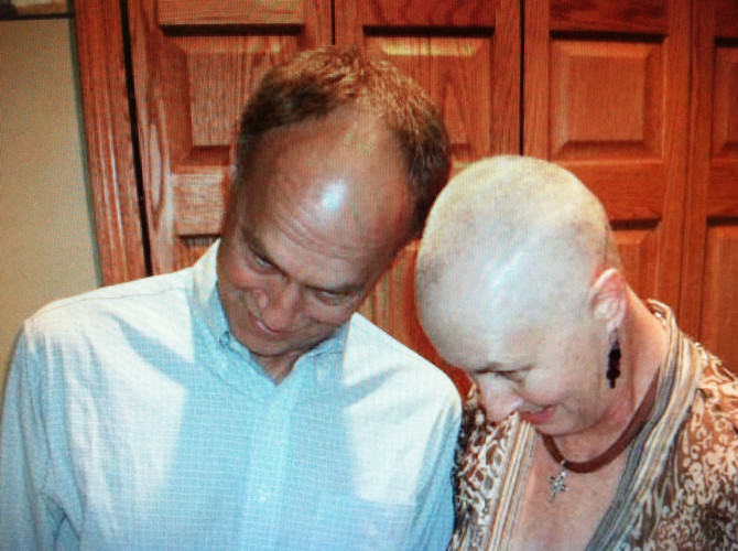 Top Ten reasons to enjoy hair loss during chemotherapy