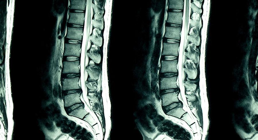 IRM du bas du dos