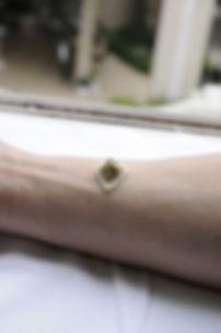 石川県 白山市 能美市 小松市 加賀市の鍼灸 和田鍼灸治療院 自律神経失調症 不妊症 慢性疾患などに注力しています。この写真はアトピー性皮膚炎で行うお灸です。