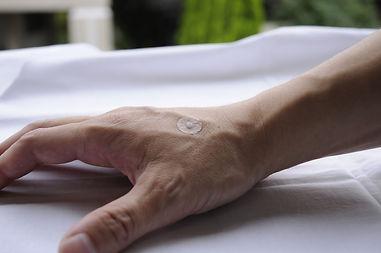 石川県 白山市 能美市 小松市 加賀市の鍼灸 和田鍼灸治療院 自律神経失調症 不妊症 慢性疾患などに注力しています。この顔面神経麻痺で使う置き鍼です。