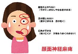 石川県 白山市 能美市 小松市 加賀市の鍼灸 和田鍼灸治療院 自律神経失調症 不妊症 慢性疾患などに注力しています。顔面神経麻痺も対象疾患です。