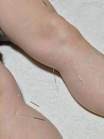 石川県 白山市 能美市 小松市 加賀市の鍼灸 和田鍼灸治療院 自律神経失調症 不妊症 慢性疾患などに注力しています。この写真は膝に鍼灸治療をしているところです。