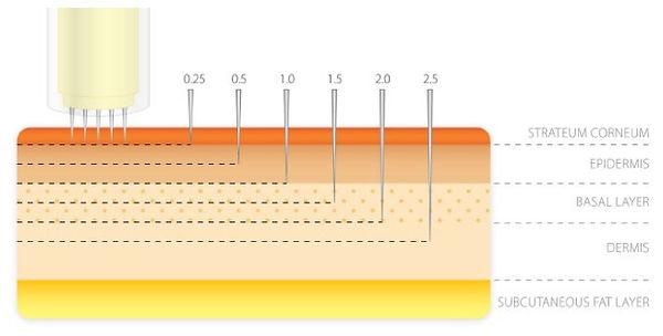 Microneedling Skin Layers.jpg