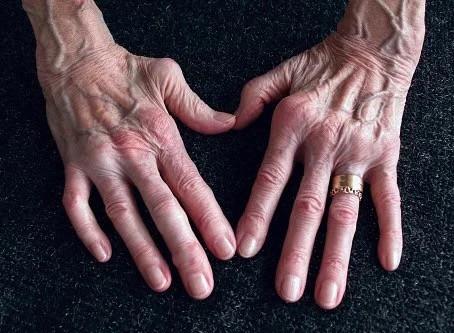 Rheumatoid Arthritis and Social Security Disability