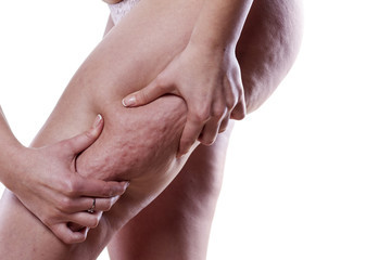 IcoOne Massage: A natural approach to cellulite that actually works.