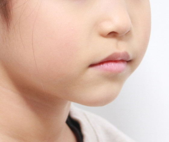 주걱턱 성장조절