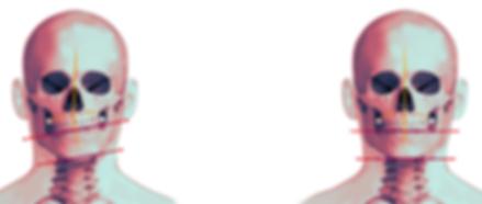 [앞면]정상교합&비대칭교합.png
