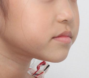 주걱턱, 거꾸로 물림(성장기)