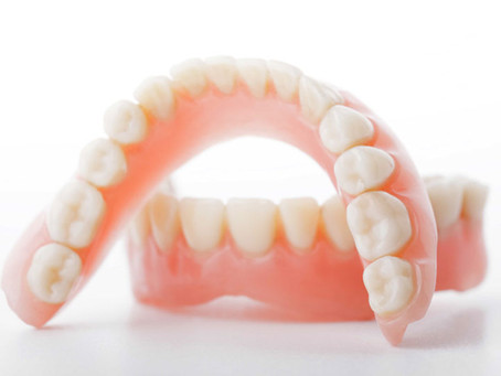 Lost or Missing Teeth: What Are Your Options for Replacing Them?