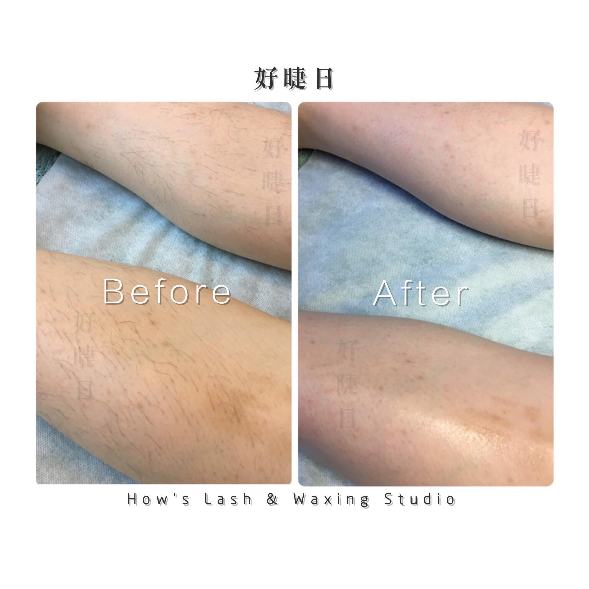 小腿|Lower Leg