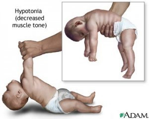 Hypotonia...NOT weakness.