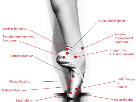 Injury Prevention Tips for Dancers