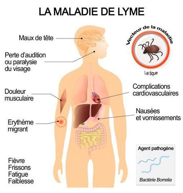 symptomes-et-complications-de-la-maladie