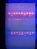 'analisi genetica del repertorio dei recettori KIR e polimorfismi HLA-C1 e C2 di coppia consente di valutare un potenziale rischio immunogenetico conseguente all'interazione funzionale tra le cellule dNK