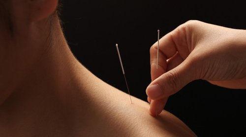 Acupuncture - 30 mins